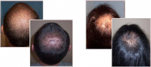 Before and After Using Provillus Hair Loss Treatment