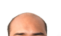 Man with bald head